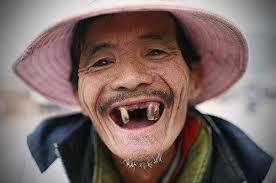 Image result for cười hở 10 cái răng